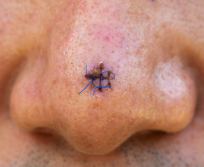 suture wound at nose