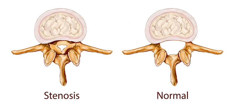 white background vector illustration of a Stenosis illustration
