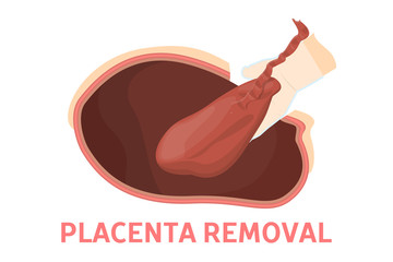 Placenta removal stage of birth via cesarean section