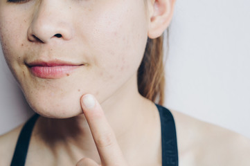 Close-up of Asian woman has problems with skin on her face. Problems with acne and scar on the female skin.