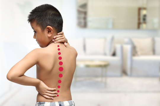 Asian kid with scoliosis