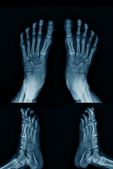 x-ray foot both side with lateral view both side