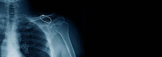 banner shoulder x-ray