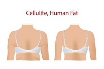 Fat female body with Bra, cellulite, Human Fat, Before and After with Fit body, vector