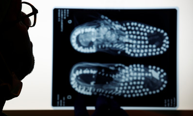 French forensic assistant Manu Robas looks at X-ray pictures showing the boots collected next to the remains of an unknow soldier, killed during World War One, found during road construction work near the battlefield of Douaumont