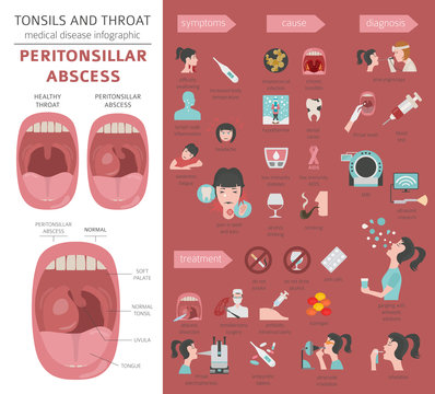 Tonsils and throat diseases. Peritonsillar abscess symptoms, treatment icon set. Medical infographic design