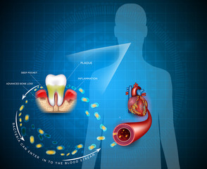 Gum disease inflammation bacteria can enter in to the blood stream an affect heart.  Periodontitis disease disease anatomy on an abstract blue background