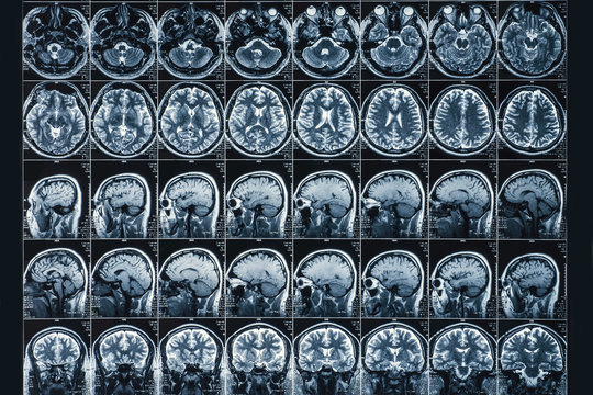 X-Ray or MRI scan or magnetic resonance tomography image of human brain and head close up, neurology concept