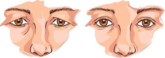 white background Vector illustration of a eyelid lift