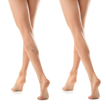 Young woman before and after varicose treatment against white background, focus on legs