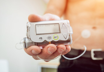 Diabetic man with an insulin pump connected in his abdomen and holding the insulin pump at his hands.