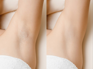 Women underarm hair removal before and after