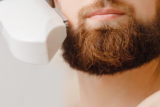 Male depilation laser hair removal beard and mustache procedure treatment in salon.