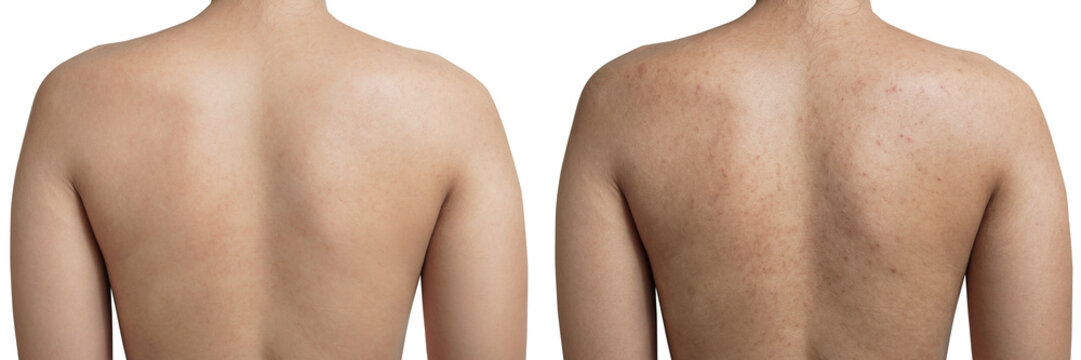 Young Asian woman have acne with red spots on the back and clean back isolated on white background, with clipping path, before and after.