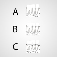 Tooth isolated flat vector image