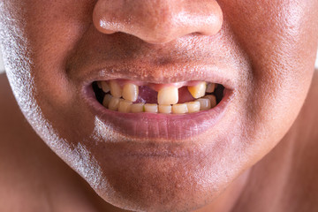 Close-up of young man with a teeth broken.