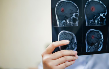 Woman hand holding MRI brain film to see for diagnostic and report. Medical concept