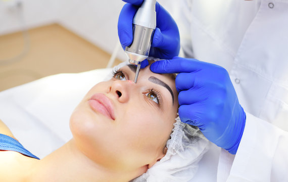 the surgeon beautician removes pigmentation and vascular nets on the skin of the patient-a beautiful young woman neodymium laser