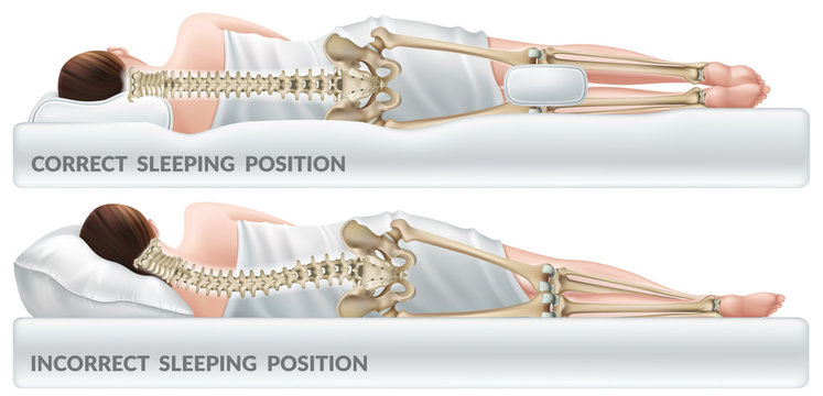 Orthopedic pillow for knees. Correct and incorrect sleeping position legs. Isolated 3d realistic vector illustration.