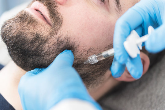 Man doing fillers on jaw