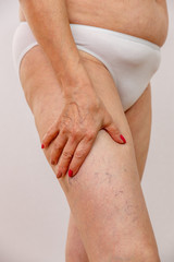 An elderly woman in white panties is touching her legs with cellulite and varicose veins on a light isolated background. Concept for medicine and cosmetology.