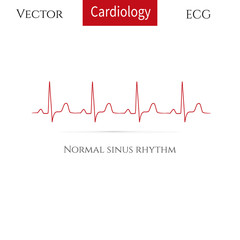 Normal heart rhythm (normal sinus rhythm).