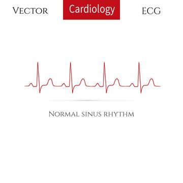 Normal heart rhythm (normal sinus rhythm).