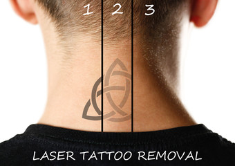 Laser tattoo removal. Close up. Isolated on white background