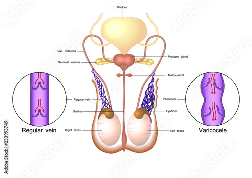 Varicocele in male reproductive system