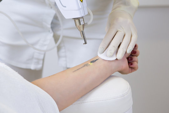 Cosmetologist doing laser tattoo removal from woman hand in cosmetology clinic