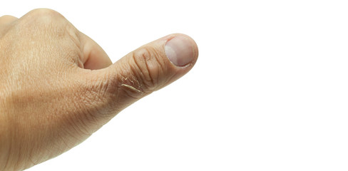 Left hand thumb wound from steam isolated on white background with clipping path.