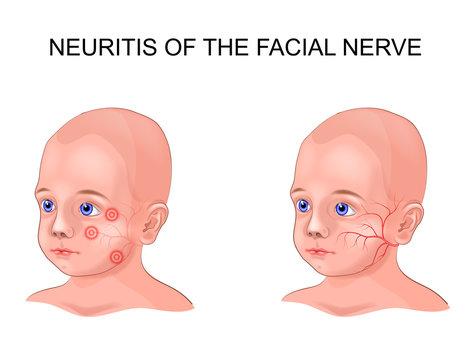 facial nerve neuritis in a child