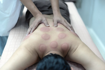 The physiotherapist is checking for abnormalities of the body aftercupping treatment and acupuncture on the back of male patient. Patient is lying down on a bed.
