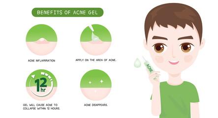 Benefits of Acne Gel Men