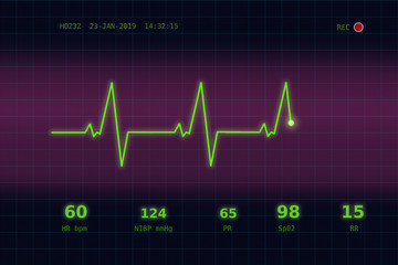 Graph of normal heartbeat on a violet - blue monitor