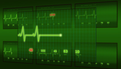 The graph of abnormal heartbeat on the green monitor with the ALARM signal is seen slightly from the side compared to other monitors