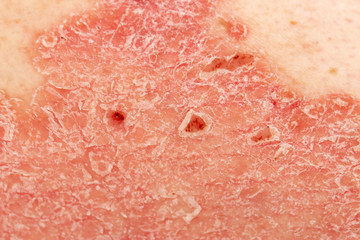 Psoriasis Vulgaris - detail of psoriatic skin disease, an autoimmune skin disorder is typically red, itchy, and scaly, macro with narrow focus