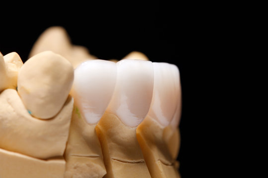 White front teeth veneers on diagnostic model on dark background. Close up.