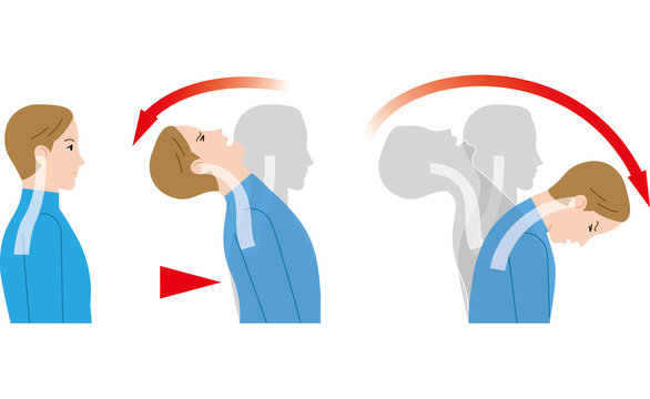 後ろからの衝撃による首の動き。むち打ち症。