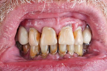 The teeth of an elderly man are spoiled by caries, tartar and poor nutrition  macro