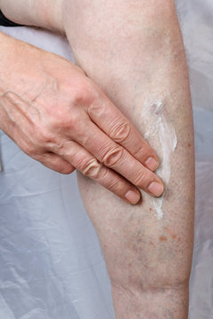 An old elderly man smears his arthritic blood veins on the leg with a healing cream.