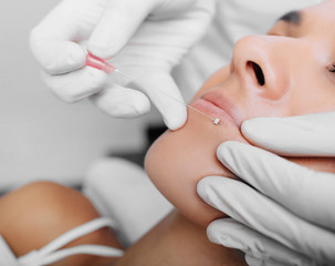 cropped woman face getting facelift , procedure mesothreads lifting skin