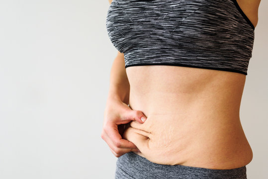 Woman belly after dieting