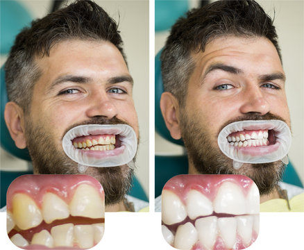 Whitening after and before. Man in dental chair. Dentist preparing for dental whitening. Health medicine people dentistry doctor curing. Result of teeth whitening.