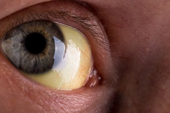 patient with jaundice. close-up shot of yellowed eyes. severe form of Hepatitis. medical concept. life and health.