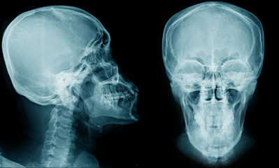 x-ray image lateral and frontal view