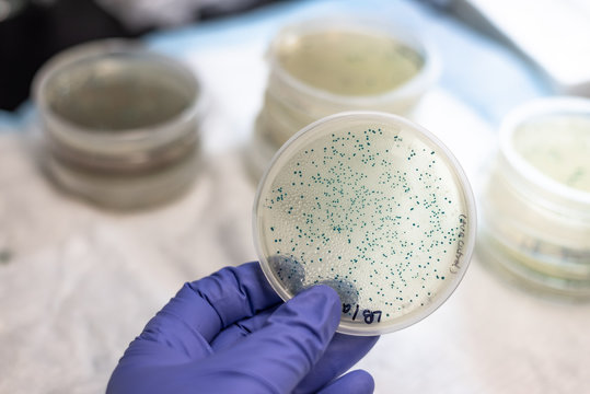 Bacterial culture plate holding in hand