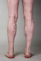 Tight varicose vein on a mans legs