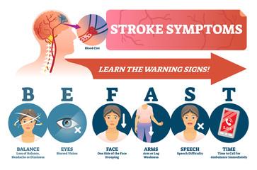 Stroke symptoms vector illustration. Signs of sudden blood clot in head.