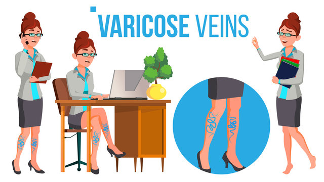 Female Legs In High Heel Shoes With Varicose Veins Vector. Isolated Cartoon Illustration